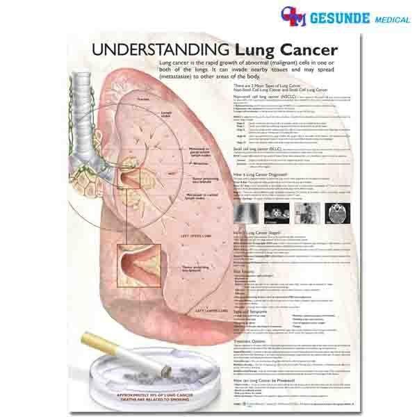 Bagan Anatomi Kanker Paru Paru
